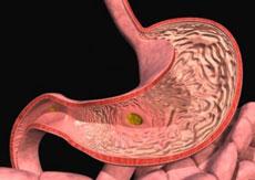 виды гастрита желудка