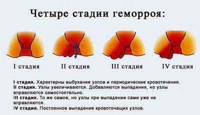 Геморой кровит или нет