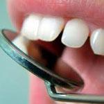 как в домашних условиях удалить зубной камень