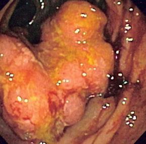 рак прямой кишки фото