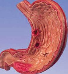 Диагноз субатрофический гастрит Эрозии желудка