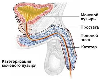 Катетеризация мочевого пузыря