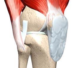 контрактура коленного сустава