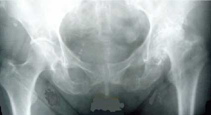 Остеохондропатия тазобедренного сустава вторичный артроз плечевого сустава